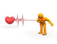 trace ecg infarctus du myocarde